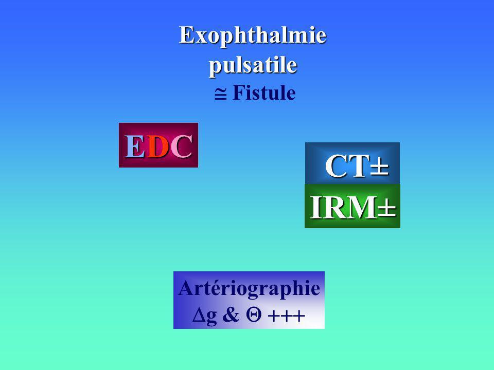 Exophthalmiepulsatile Fistule EDCEDCEDCEDC Artériographie g & CT± CT±IRM±