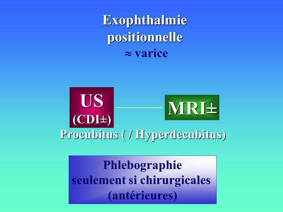 Exophthalmiepositionnelle varice MRI± US(CDI±) Procubitus ( / Hyperdecubitus) Phlebographie seulement si chirurgicales (antérieures)