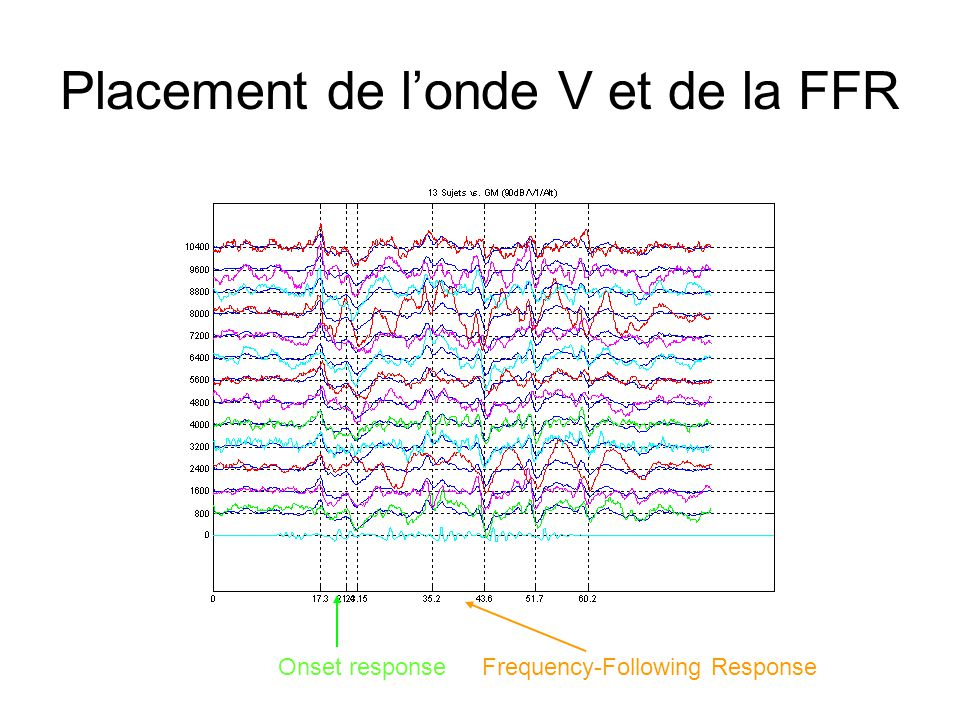 Placement de londe V et de la FFR Onset responseFrequency-Following Response