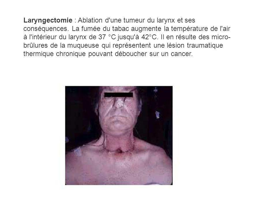 Laryngectomie : Ablation d'une tumeur du larynx et ses conséquences. La fumée du tabac augmente la température de l'air à l'intérieur du larynx de 37
