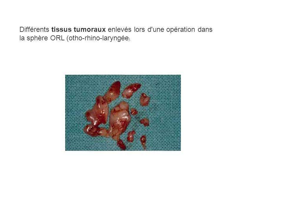 Différents tissus tumoraux enlevés lors d'une opération dans la sphère ORL (otho-rhino-laryngée ).
