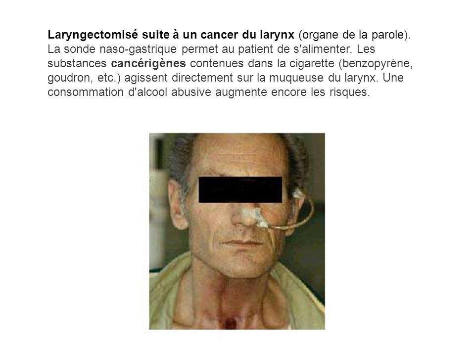 Laryngectomisé suite à un cancer du larynx (organe de la parole). La sonde naso-gastrique permet au patient de s'alimenter. Les substances cancérigène