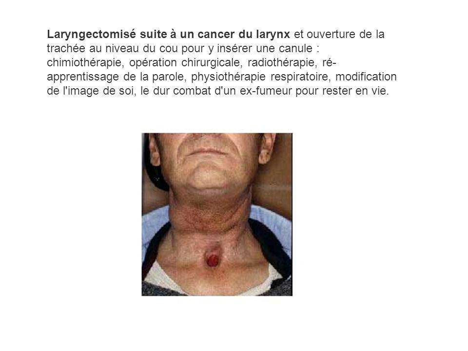 Laryngectomisé suite à un cancer du larynx et ouverture de la trachée au niveau du cou pour y insérer une canule : chimiothérapie, opération chirurgic