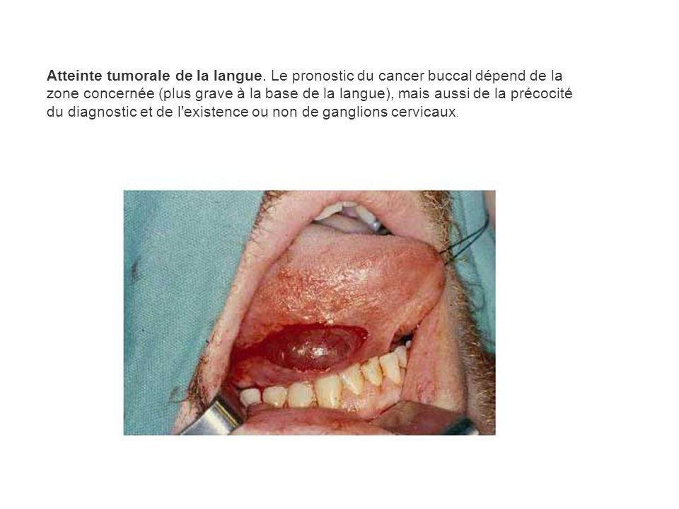 Atteinte tumorale de la langue. Le pronostic du cancer buccal dépend de la zone concernée (plus grave à la base de la langue), mais aussi de la précoc