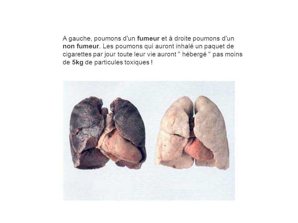 A gauche, poumons d'un fumeur et à droite poumons d'un non fumeur. Les poumons qui auront inhalé un paquet de cigarettes par jour toute leur vie auron