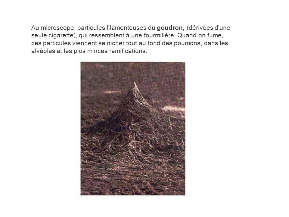 Au microscope, particules filamenteuses du goudron, (dérivées d'une seule cigarette), qui ressemblent à une fourmilière. Quand on fume, ces particules