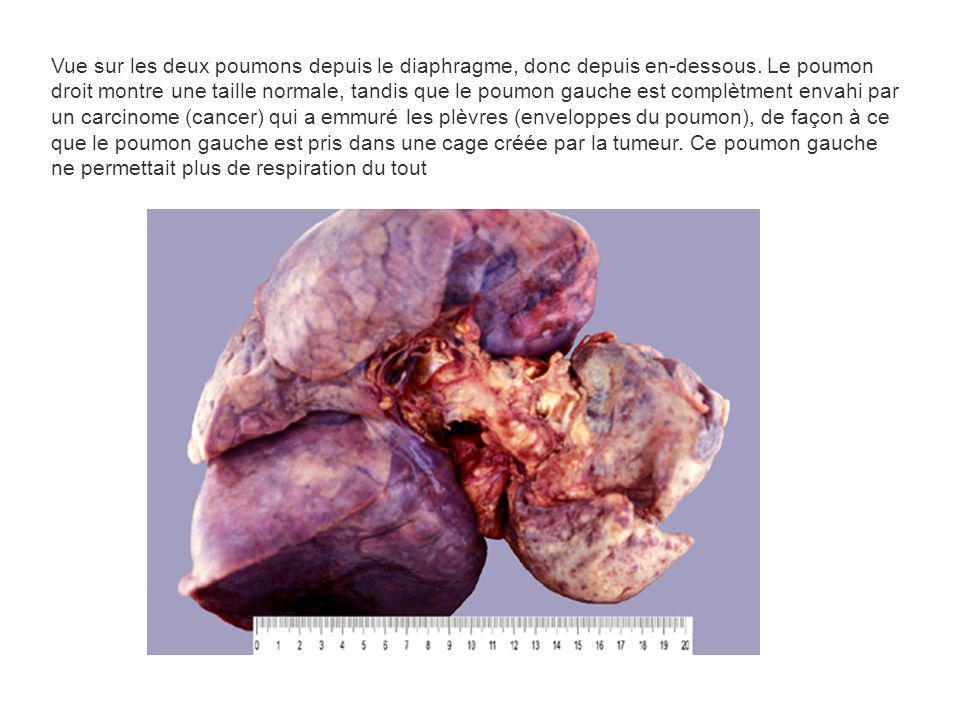 Vue sur les deux poumons depuis le diaphragme, donc depuis en-dessous. Le poumon droit montre une taille normale, tandis que le poumon gauche est comp