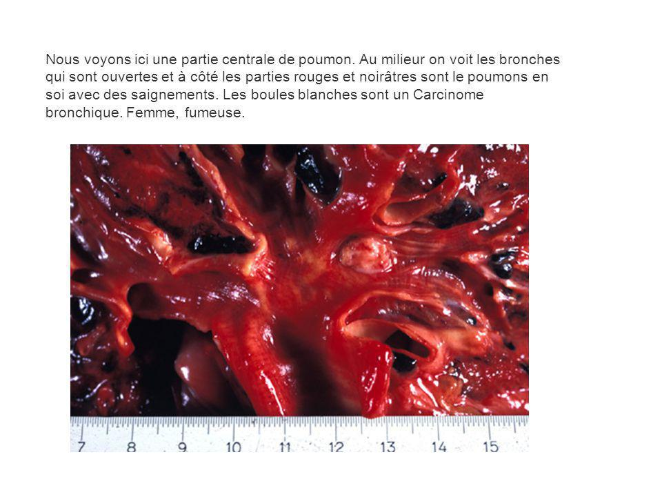 Nous voyons ici une partie centrale de poumon. Au milieur on voit les bronches qui sont ouvertes et à côté les parties rouges et noirâtres sont le pou
