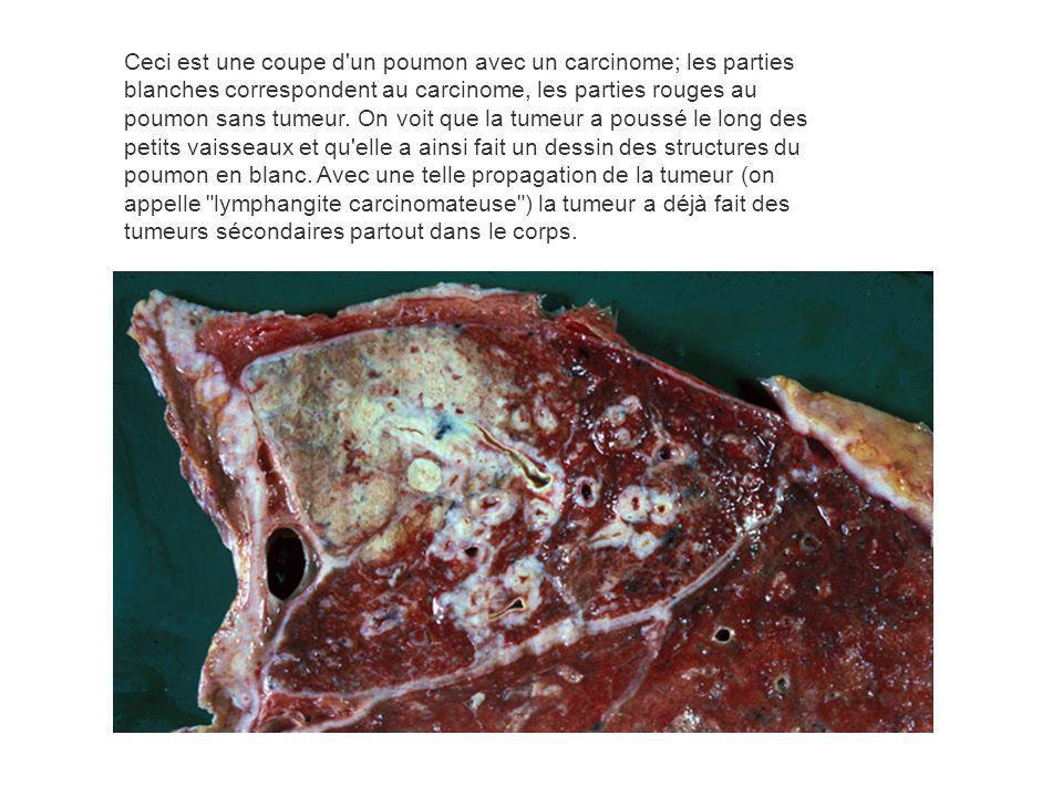 Ceci est une coupe d'un poumon avec un carcinome; les parties blanches correspondent au carcinome, les parties rouges au poumon sans tumeur. On voit q