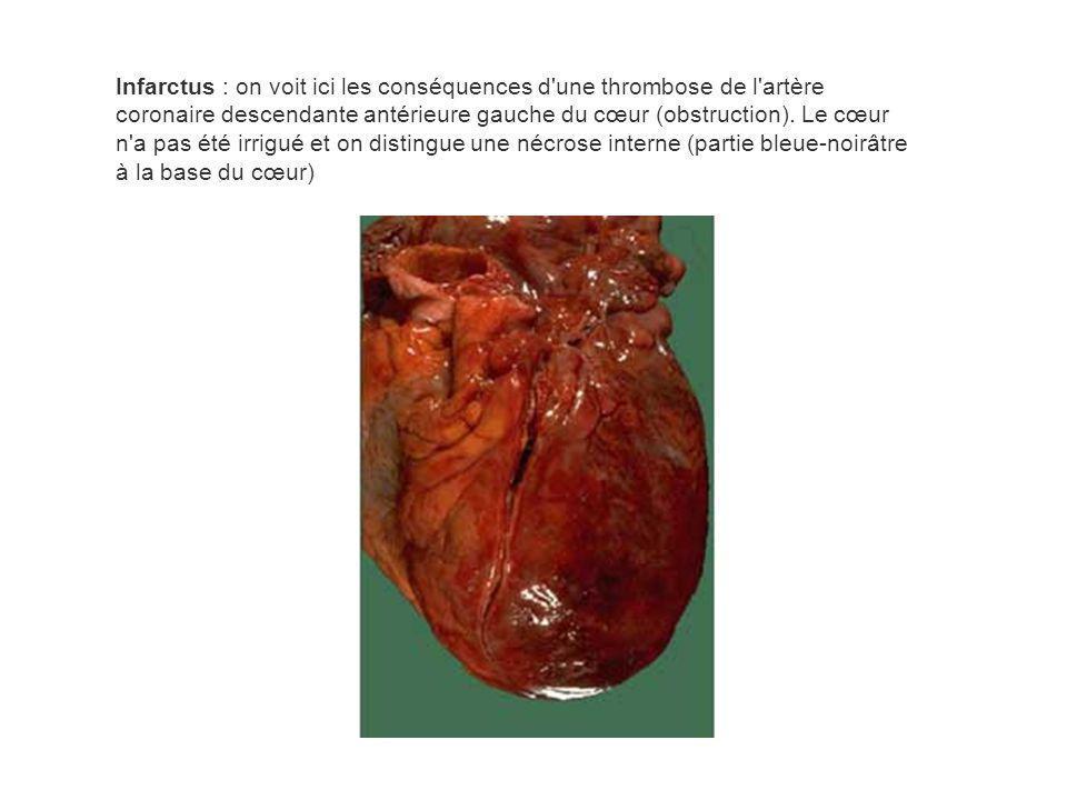 Infarctus : on voit ici les conséquences d'une thrombose de l'artère coronaire descendante antérieure gauche du cœur (obstruction). Le cœur n'a pas ét