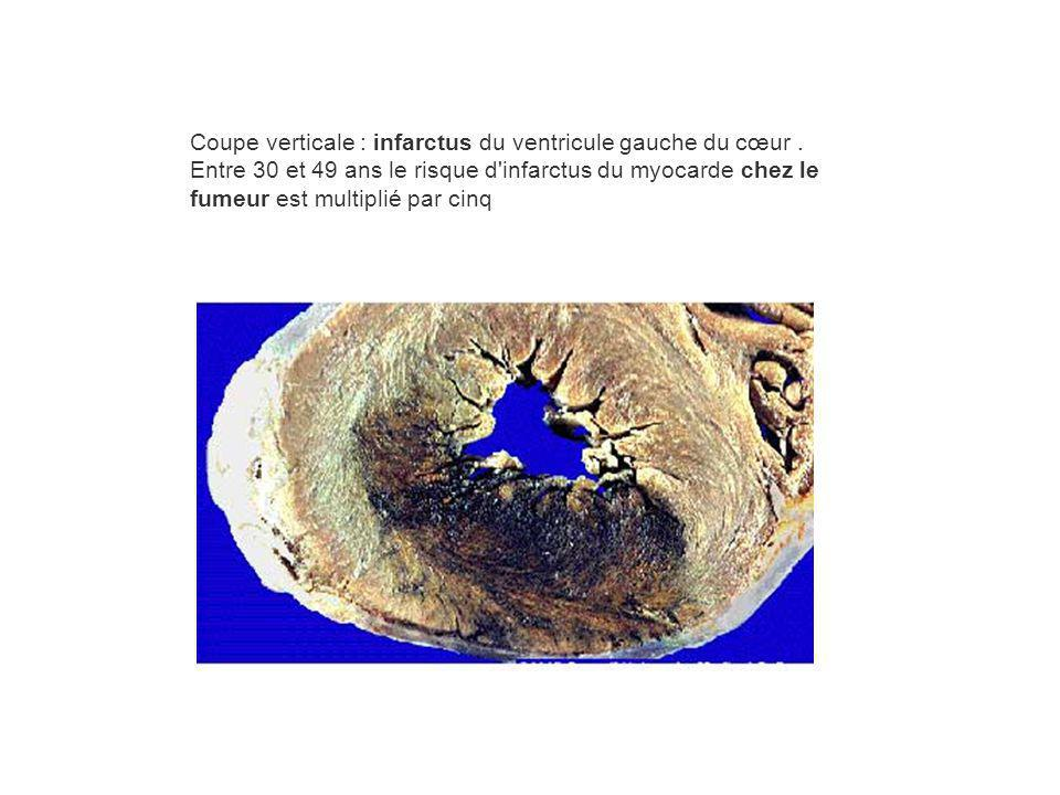 Coupe verticale : infarctus du ventricule gauche du cœur. Entre 30 et 49 ans le risque d'infarctus du myocarde chez le fumeur est multiplié par cinq
