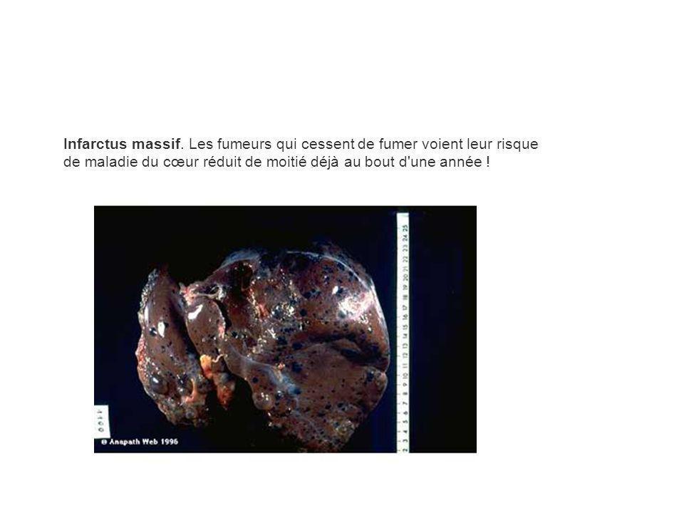 Infarctus massif. Les fumeurs qui cessent de fumer voient leur risque de maladie du cœur réduit de moitié déjà au bout d'une année !
