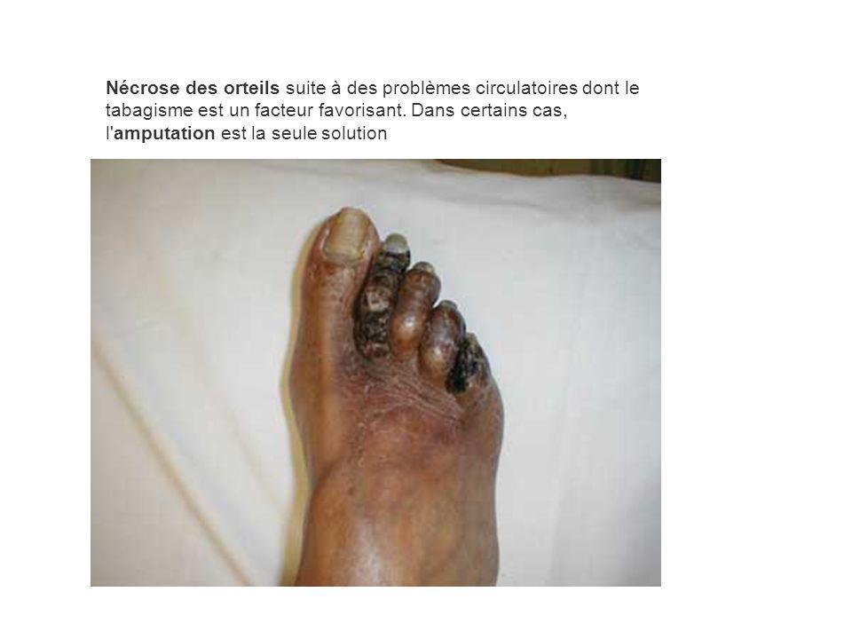 Nécrose des orteils suite à des problèmes circulatoires dont le tabagisme est un facteur favorisant. Dans certains cas, l'amputation est la seule solu