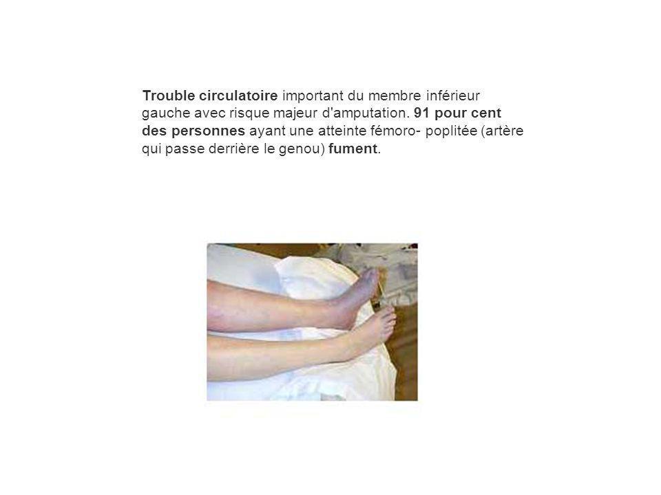 Trouble circulatoire important du membre inférieur gauche avec risque majeur d'amputation. 91 pour cent des personnes ayant une atteinte fémoro- popli