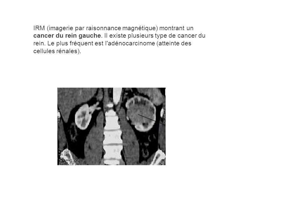 IRM (imagerie par raisonnance magnétique) montrant un cancer du rein gauche. Il existe plusieurs type de cancer du rein. Le plus fréquent est l'adénoc