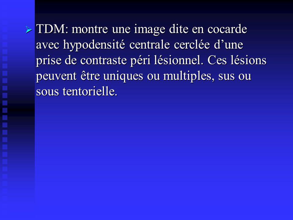 TDM: montre une image dite en cocarde avec hypodensité centrale cerclée dune prise de contraste péri lésionnel. Ces lésions peuvent être uniques ou mu