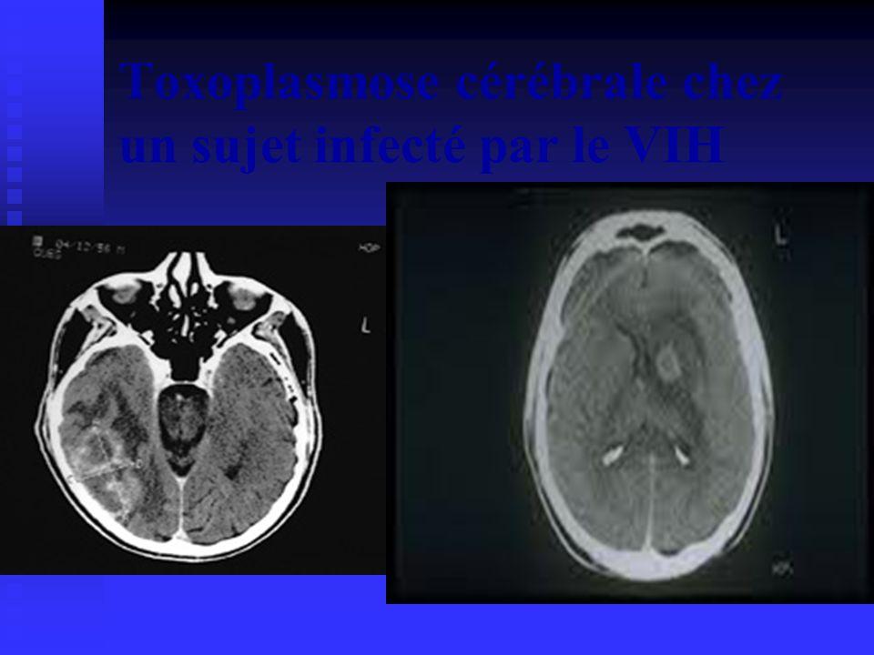 Toxoplasmose cérébrale chez un sujet infecté par le VIH TOXOPLASMOSE CEREBRALE CHEZ LE SUJET INFECTE PAR LE VIH/SIDA Revue de littérature BOUBACAR MOUSSA HAOUA EM7 FSS/niamey/NIGER PLAN INTRODUCTION I) OBJECTIFS II) SIGNES CLINIQUES III) DIAGNOSTIC POSITIF IV) DIAGNOSTIC DIFFERENCIEL V) EVOLUTION VI) TRAITEMENT CURATIF VII) PROPHYLAXIE CONCLUSION INTRODUCTION la toxoplasmose est une parasitose due au Toxoplasma gondi ; cest un coccidie dont lhôte définitif est le chat.