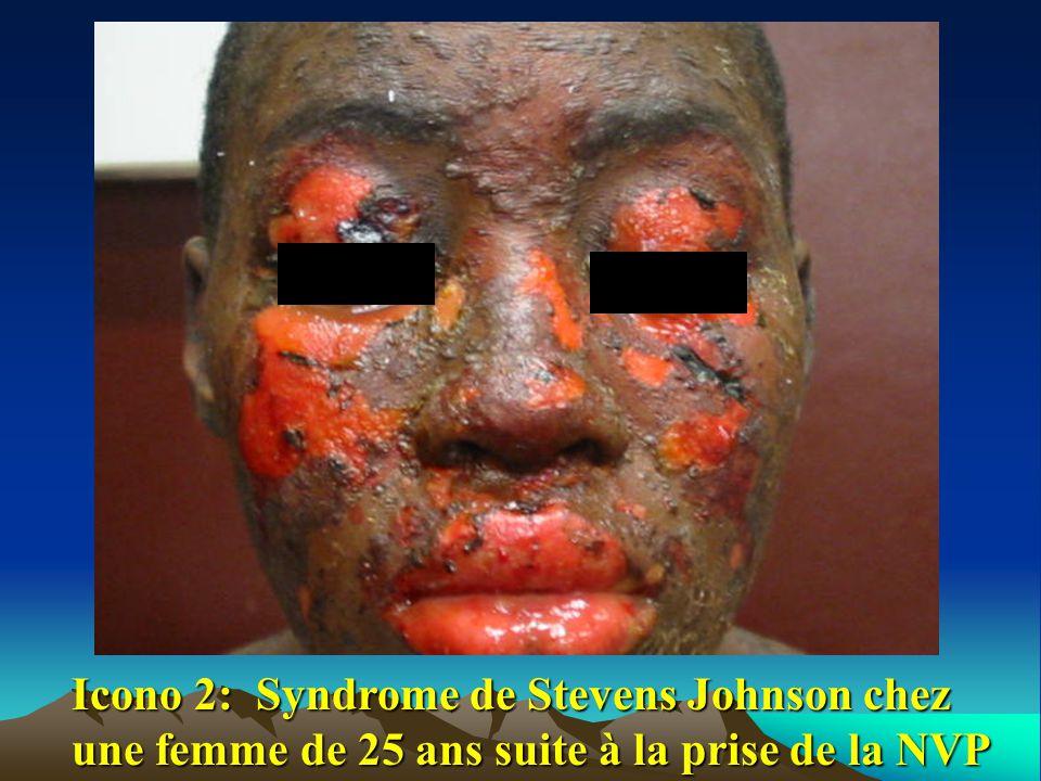 Icono 2: Syndrome de Stevens Johnson chez une femme de 25 ans suite à la prise de la NVP