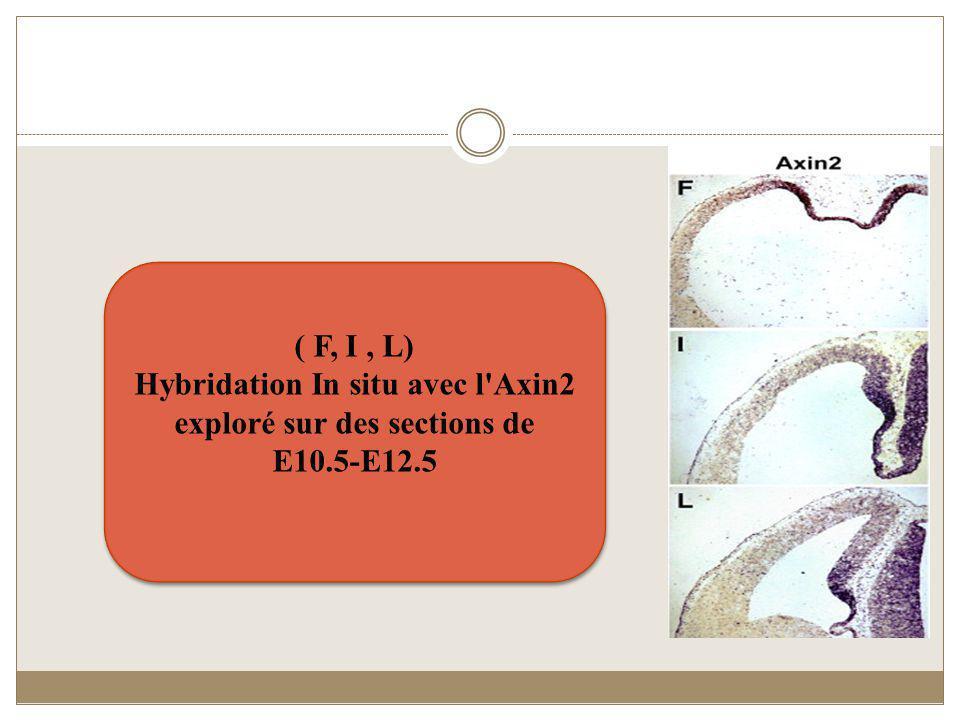 ( F, I, L) Hybridation In situ avec l'Axin2 exploré sur des sections de E10.5-E12.5 ( F, I, L) Hybridation In situ avec l'Axin2 exploré sur des sectio