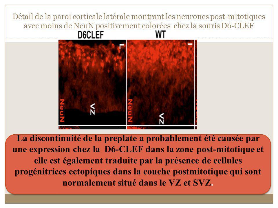 Détail de la paroi corticale latérale montrant les neurones post-mitotiques avec moins de NeuN positivement colorées chez la souris D6-CLEF La discont