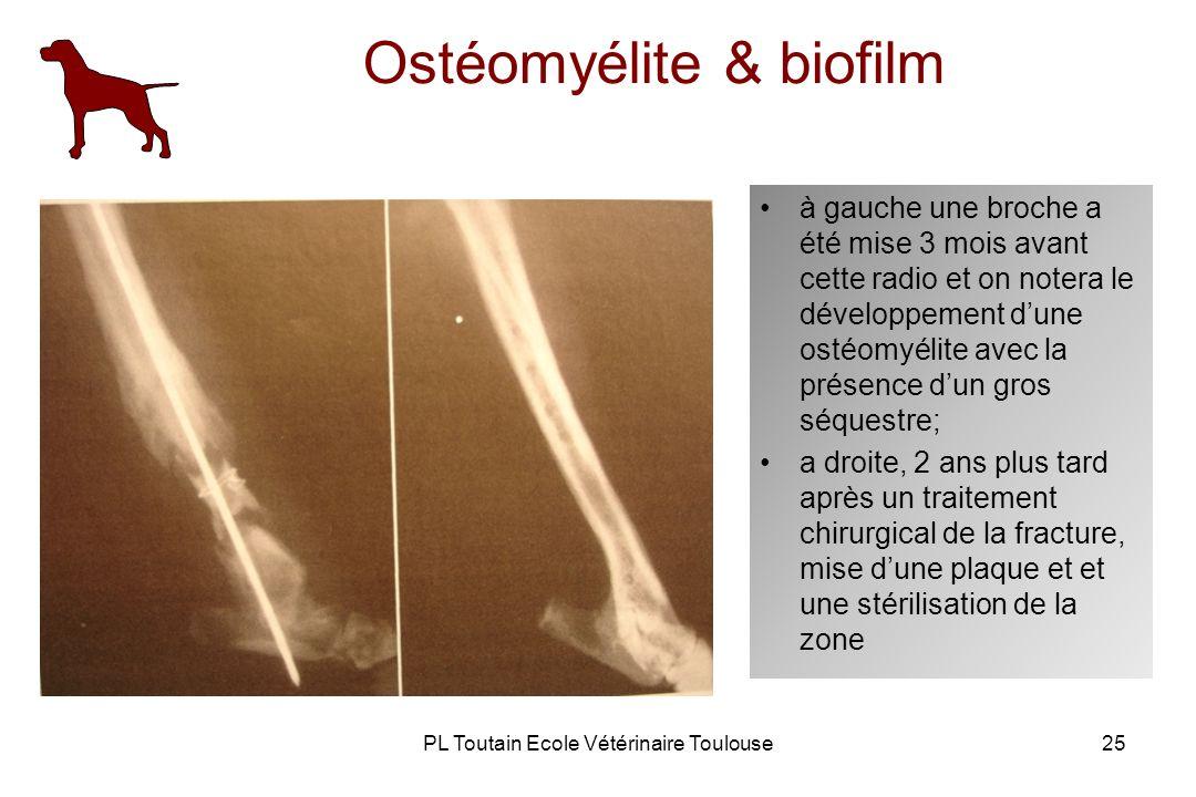 PL Toutain Ecole Vétérinaire Toulouse25 Ostéomyélite & biofilm à gauche une broche a été mise 3 mois avant cette radio et on notera le développement dune ostéomyélite avec la présence dun gros séquestre; a droite, 2 ans plus tard après un traitement chirurgical de la fracture, mise dune plaque et et une stérilisation de la zone