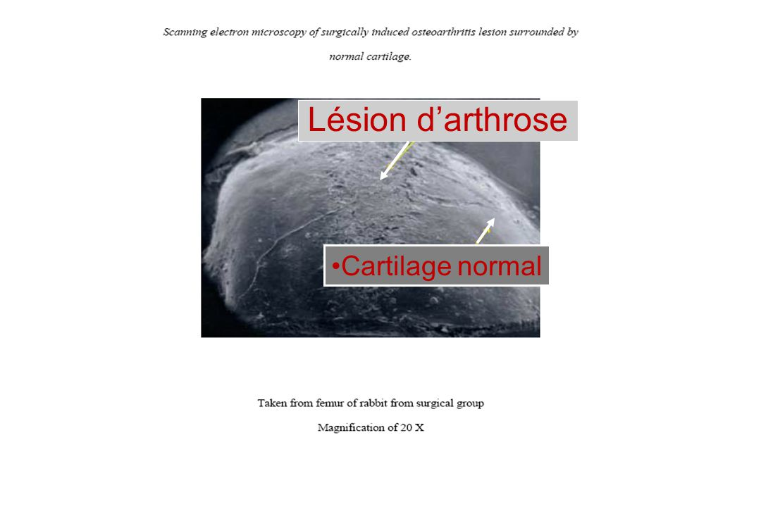 Lésion darthrose Cartilage normal