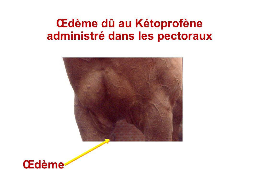 Œdème dû au Kétoprofène administré dans les pectoraux Œdème