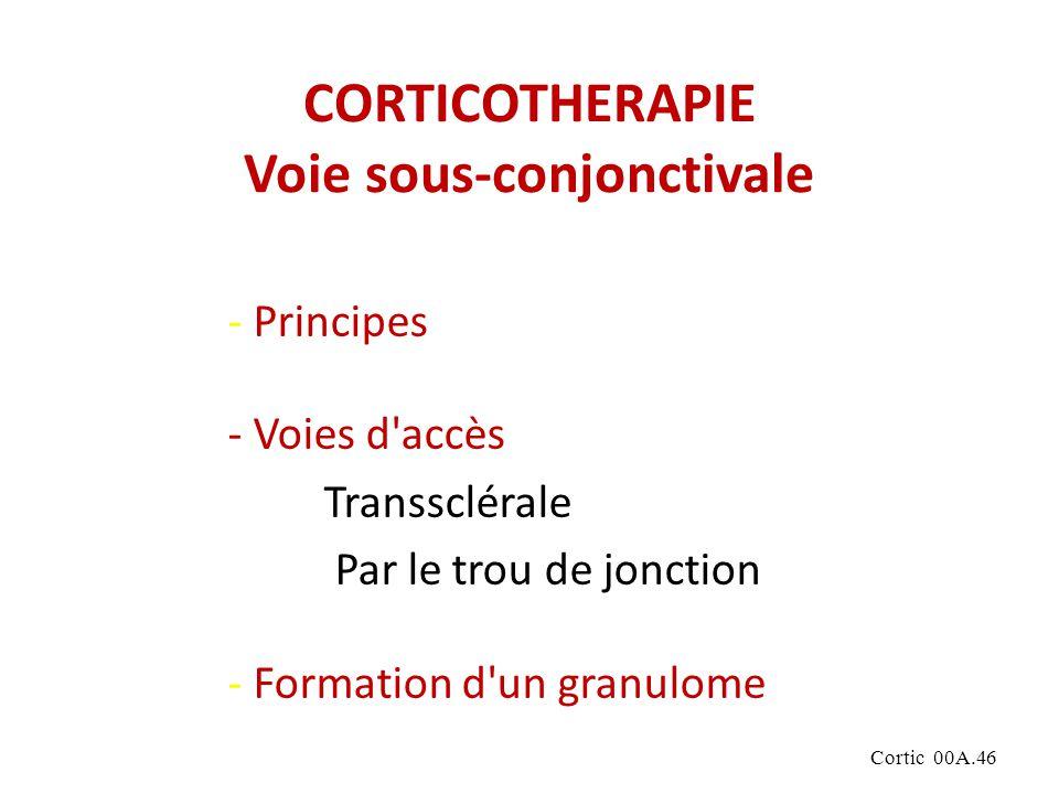 Cortic 00A.46 CORTICOTHERAPIE Voie sous-conjonctivale - Principes - Voies d accès Transsclérale Par le trou de jonction - Formation d un granulome