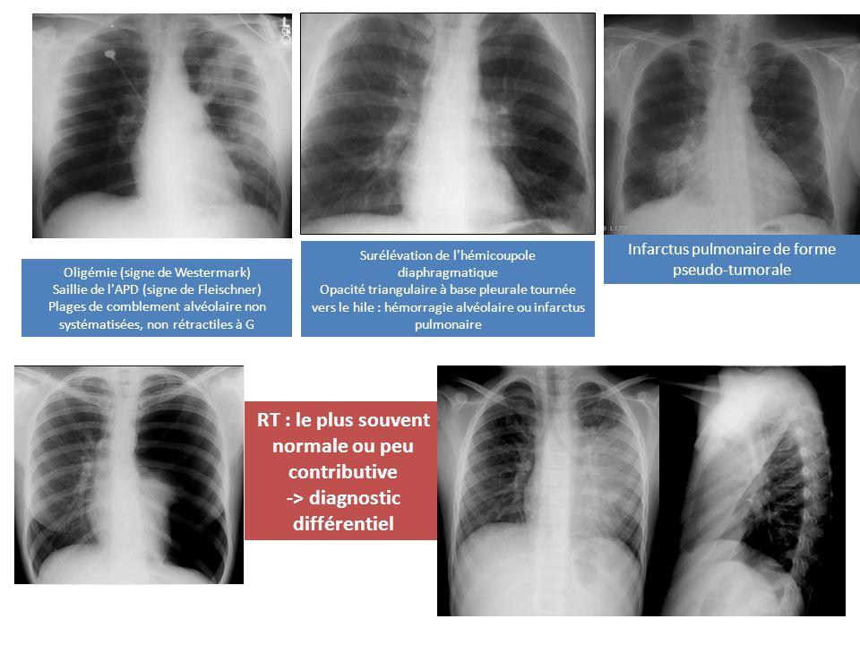 Surélévation de lhémicoupole diaphragmatique Opacité triangulaire à base pleurale tournée vers le hile : hémorragie alvéolaire ou infarctus pulmonaire