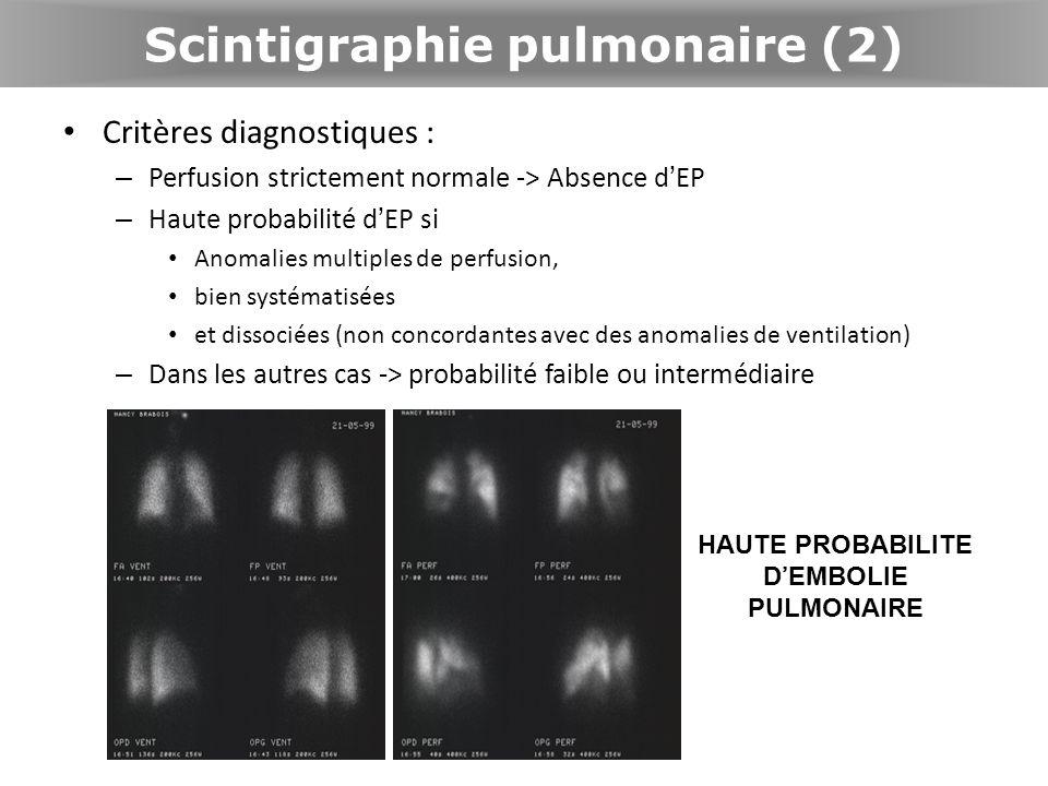 Scintigraphie pulmonaire (2) Critères diagnostiques : – Perfusion strictement normale -> Absence dEP – Haute probabilité dEP si Anomalies multiples de