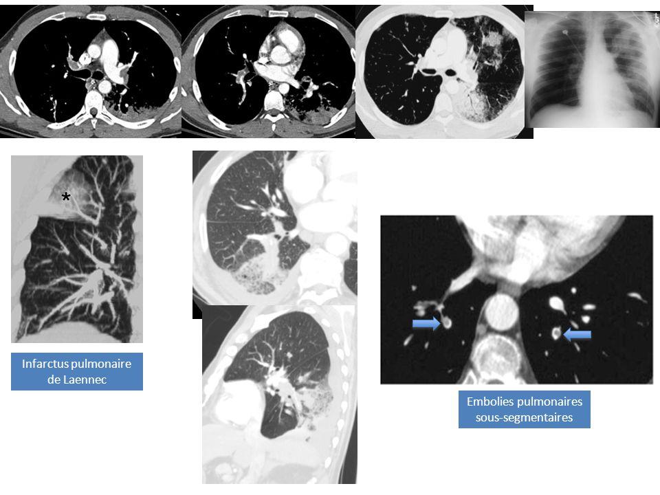 Infarctus pulmonaire de Laennec Embolies pulmonaires sous-segmentaires