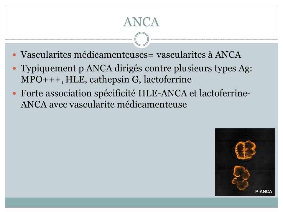ANCA Vascularites médicamenteuses= vascularites à ANCA Typiquement p ANCA dirigés contre plusieurs types Ag: MPO+++, HLE, cathepsin G, lactoferrine Fo
