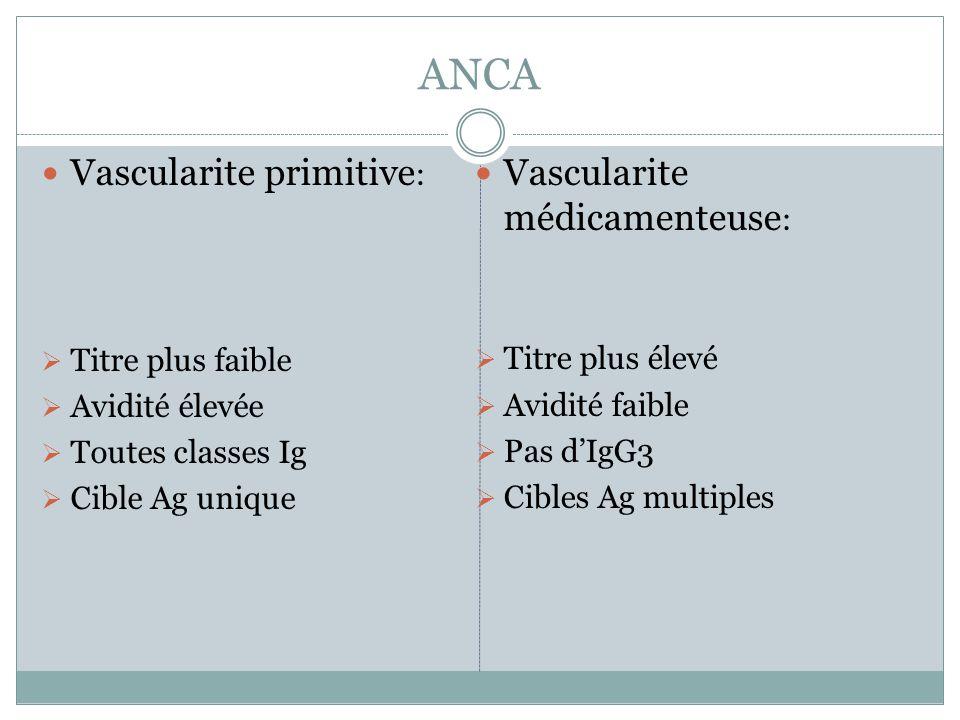 ANCA Vascularite primitive : Titre plus faible Avidité élevée Toutes classes Ig Cible Ag unique Vascularite médicamenteuse : Titre plus élevé Avidité