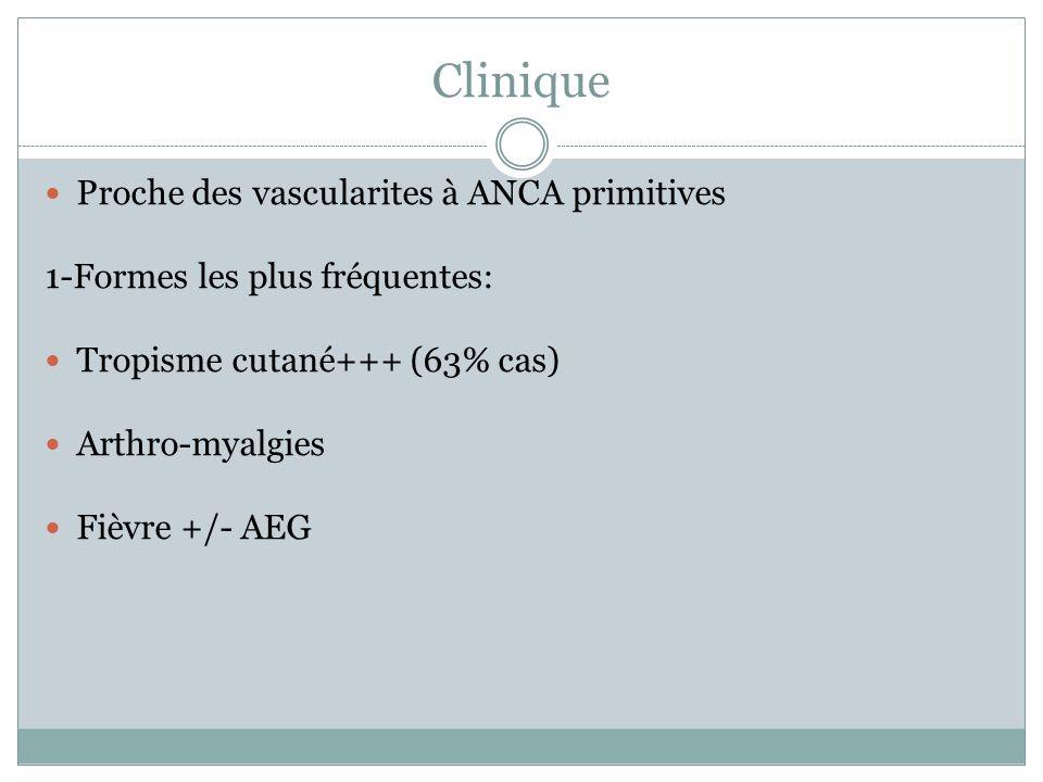 Clinique Proche des vascularites à ANCA primitives 1-Formes les plus fréquentes: Tropisme cutané+++ (63% cas) Arthro-myalgies Fièvre +/- AEG