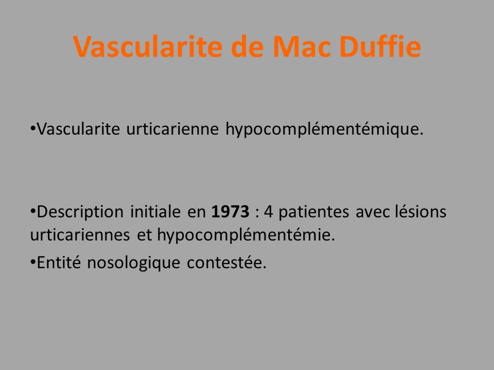 Vascularite de Mac Duffie Vascularite urticarienne hypocomplémentémique. Description initiale en 1973 : 4 patientes avec lésions urticariennes et hypo