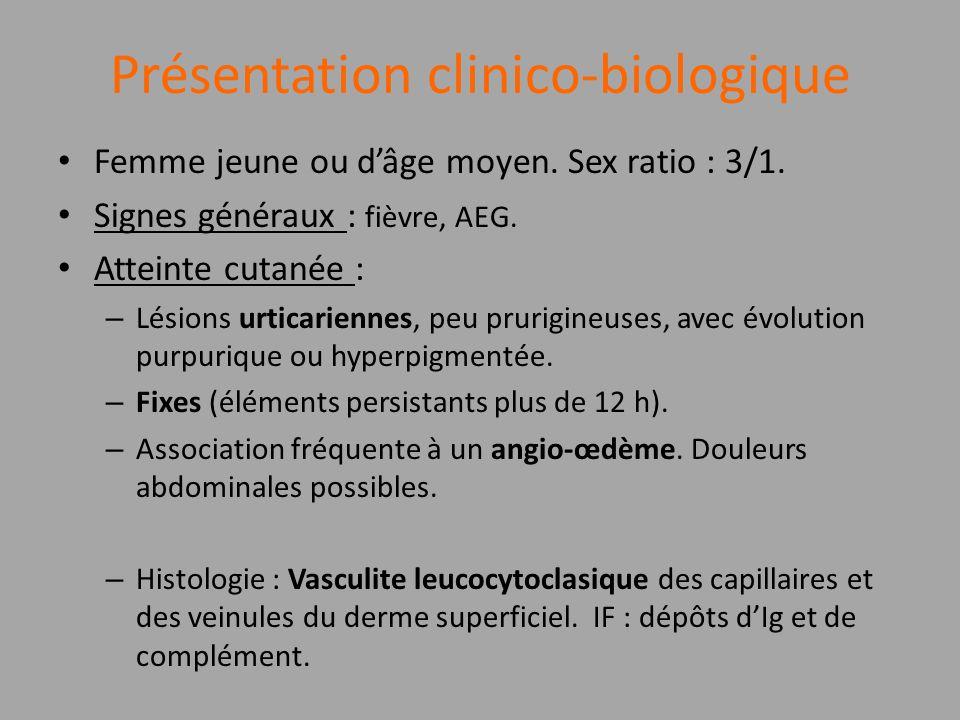 Présentation clinico-biologique Femme jeune ou dâge moyen. Sex ratio : 3/1. Signes généraux : fièvre, AEG. Atteinte cutanée : – Lésions urticariennes,