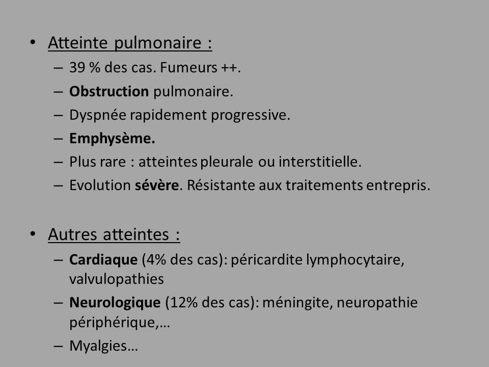 Atteinte pulmonaire : – 39 % des cas. Fumeurs ++. – Obstruction pulmonaire. – Dyspnée rapidement progressive. – Emphysème. – Plus rare : atteintes ple
