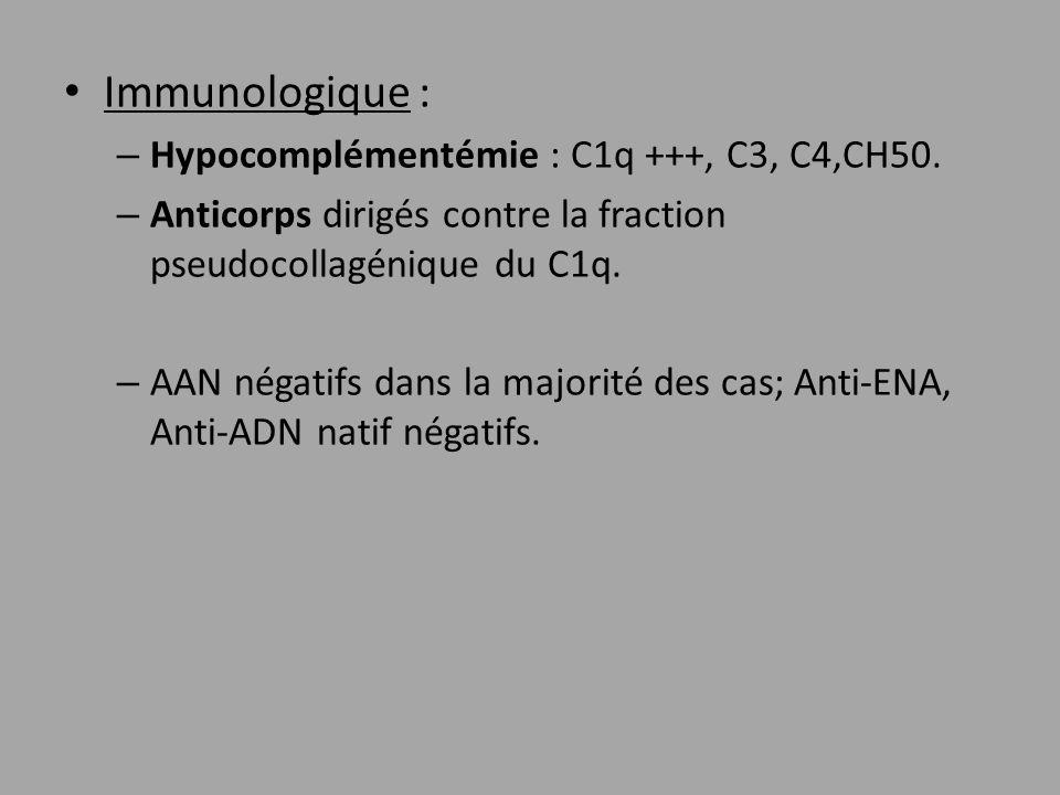 Immunologique : – Hypocomplémentémie : C1q +++, C3, C4,CH50. – Anticorps dirigés contre la fraction pseudocollagénique du C1q. – AAN négatifs dans la