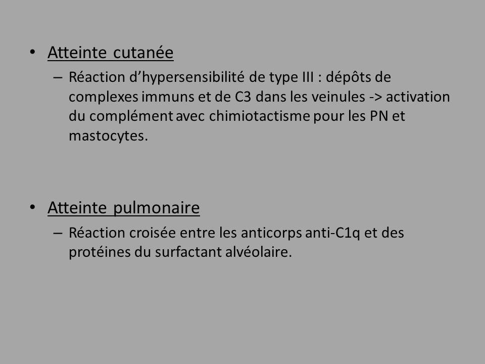 Atteinte cutanée – Réaction dhypersensibilité de type III : dépôts de complexes immuns et de C3 dans les veinules -> activation du complément avec chi