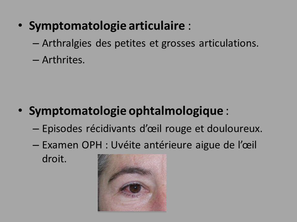 Symptomatologie articulaire : – Arthralgies des petites et grosses articulations. – Arthrites. Symptomatologie ophtalmologique : – Episodes récidivant