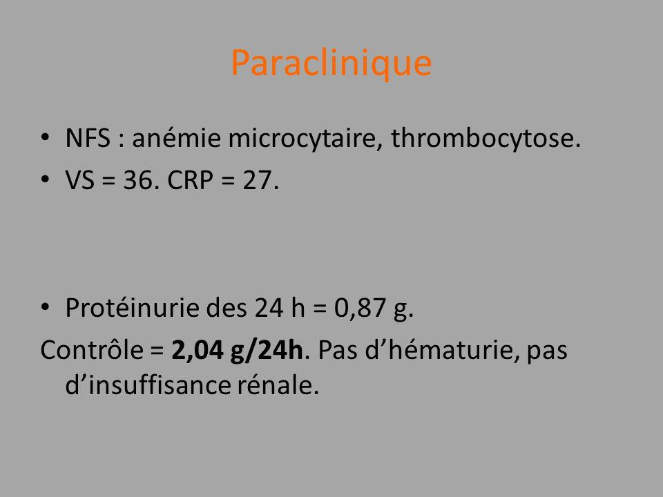 Paraclinique NFS : anémie microcytaire, thrombocytose. VS = 36. CRP = 27. Protéinurie des 24 h = 0,87 g. Contrôle = 2,04 g/24h. Pas dhématurie, pas di