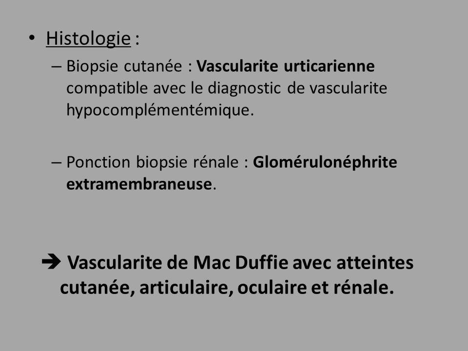 Histologie : – Biopsie cutanée : Vascularite urticarienne compatible avec le diagnostic de vascularite hypocomplémentémique. – Ponction biopsie rénale