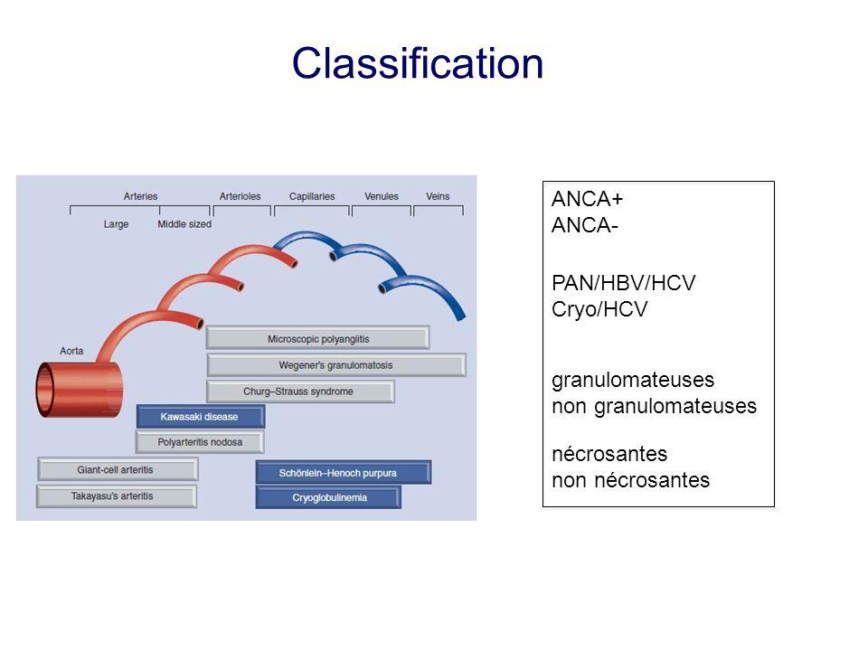 PAN/HBV/HCV Cryo/HCV granulomateuses non granulomateuses nécrosantes non nécrosantes ANCA+ ANCA- Classification
