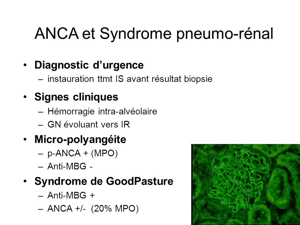 ANCA et Syndrome pneumo-rénal Diagnostic durgence –instauration ttmt IS avant résultat biopsie Signes cliniques –Hémorragie intra-alvéolaire –GN évolu