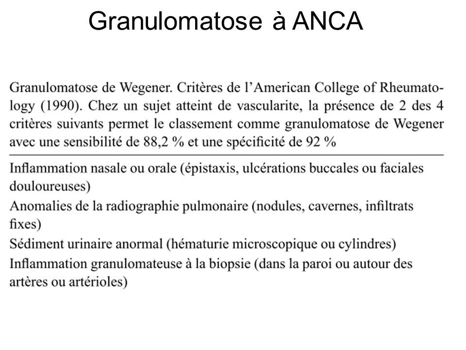 Granulomatose à ANCA
