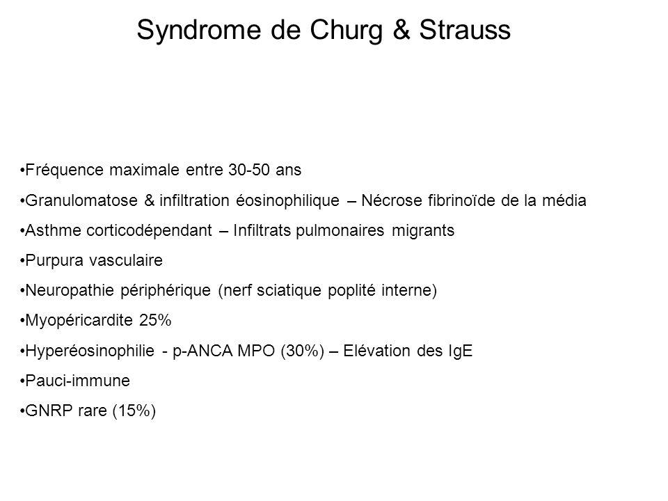Syndrome de Churg & Strauss Fréquence maximale entre 30-50 ans Granulomatose & infiltration éosinophilique – Nécrose fibrinoïde de la média Asthme cor