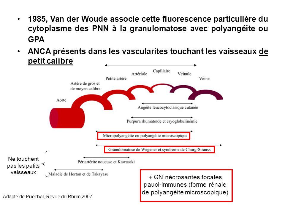 1985, Van der Woude associe cette fluorescence particulière du cytoplasme des PNN à la granulomatose avec polyangéite ou GPA ANCA présents dans les va