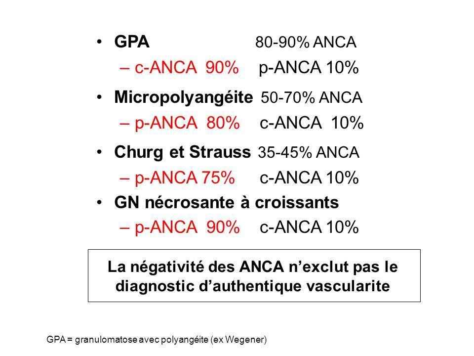 GPA 80-90% ANCA –c-ANCA 90% p-ANCA 10% Micropolyangéite 50-70% ANCA –p-ANCA 80% c-ANCA 10% Churg et Strauss 35-45% ANCA –p-ANCA 75% c-ANCA 10% GN nécr