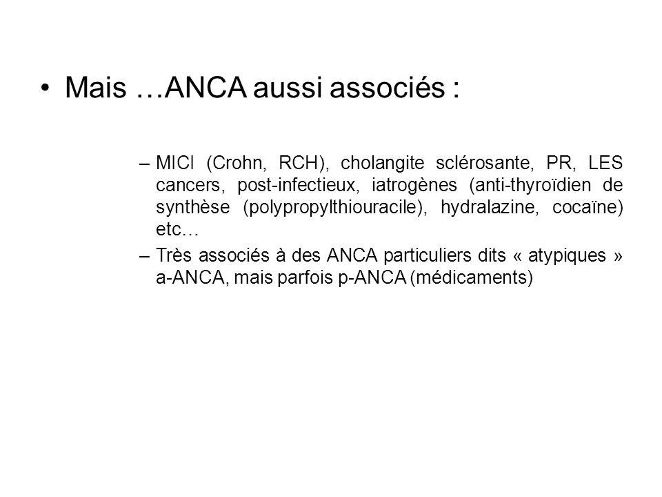 Mais …ANCA aussi associés : –MICI (Crohn, RCH), cholangite sclérosante, PR, LES cancers, post-infectieux, iatrogènes (anti-thyroïdien de synthèse (pol