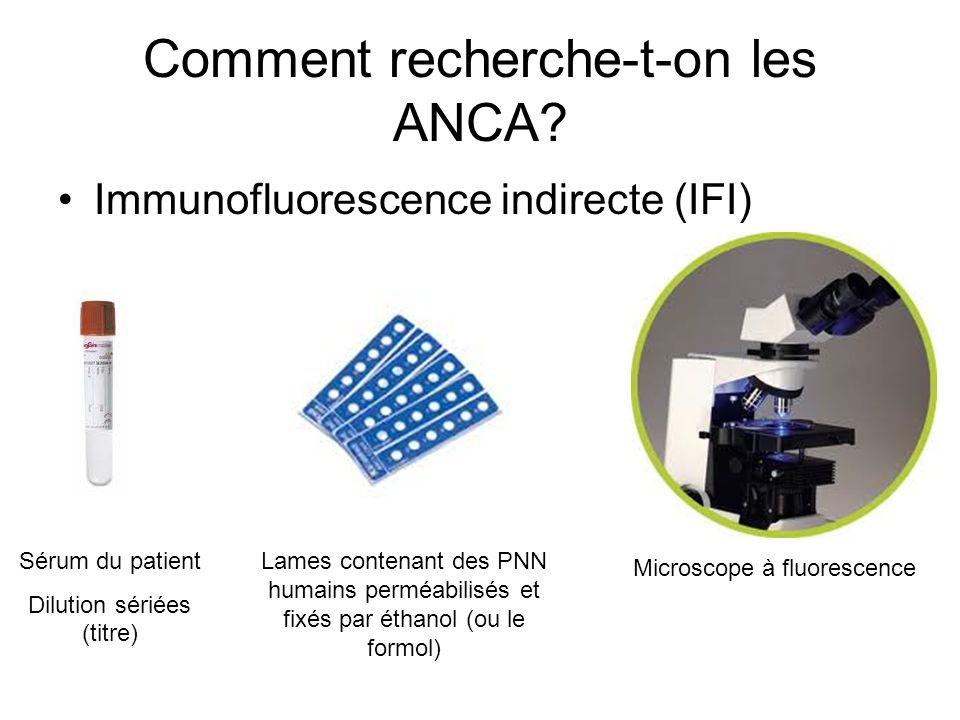 Comment recherche-t-on les ANCA? Immunofluorescence indirecte (IFI) Sérum du patient Dilution sériées (titre) Lames contenant des PNN humains perméabi